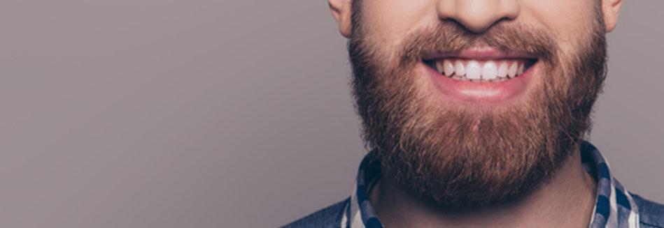 Trasplante de Barba